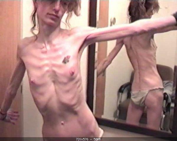 Anorexic 1528-kiel d5M2c