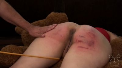 AssumethePositionStudios - Strap and Cane Bruises for Jiggles